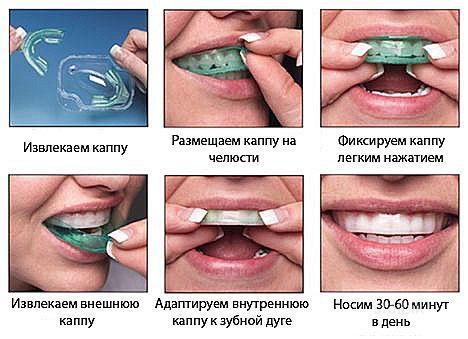 Капы на зубы в домашних условиях